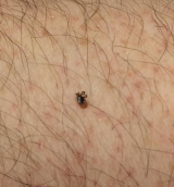 Poor example of a tick photo